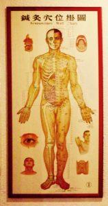 Behandlung: Menschlicher Körper mit Akupunkturpunkten